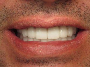 patient 34 after