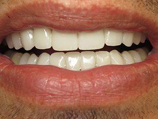 patient 27 after